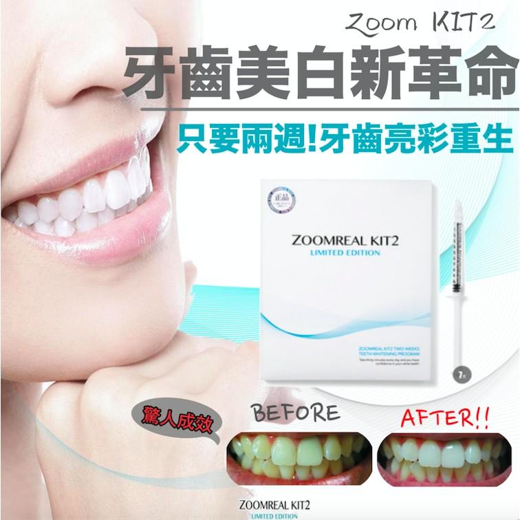韓國新發燒Zoomreal kit2 兩週奇蹟美白牙齒精華七支入重現亮白光彩~艾麗小姐愛漂