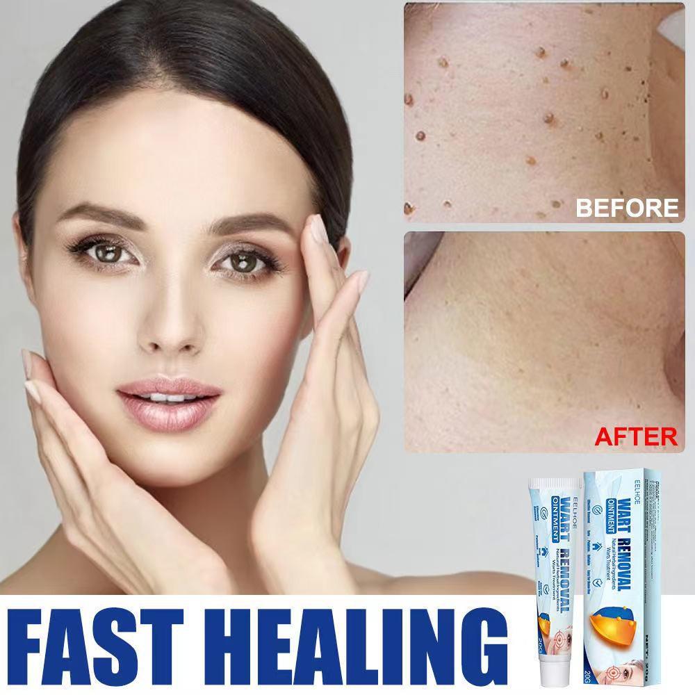 【快速見效】wart removal 美膚去疣膏  瘊疣平祛疣膏 鸡眼膏扁平疣瘊子