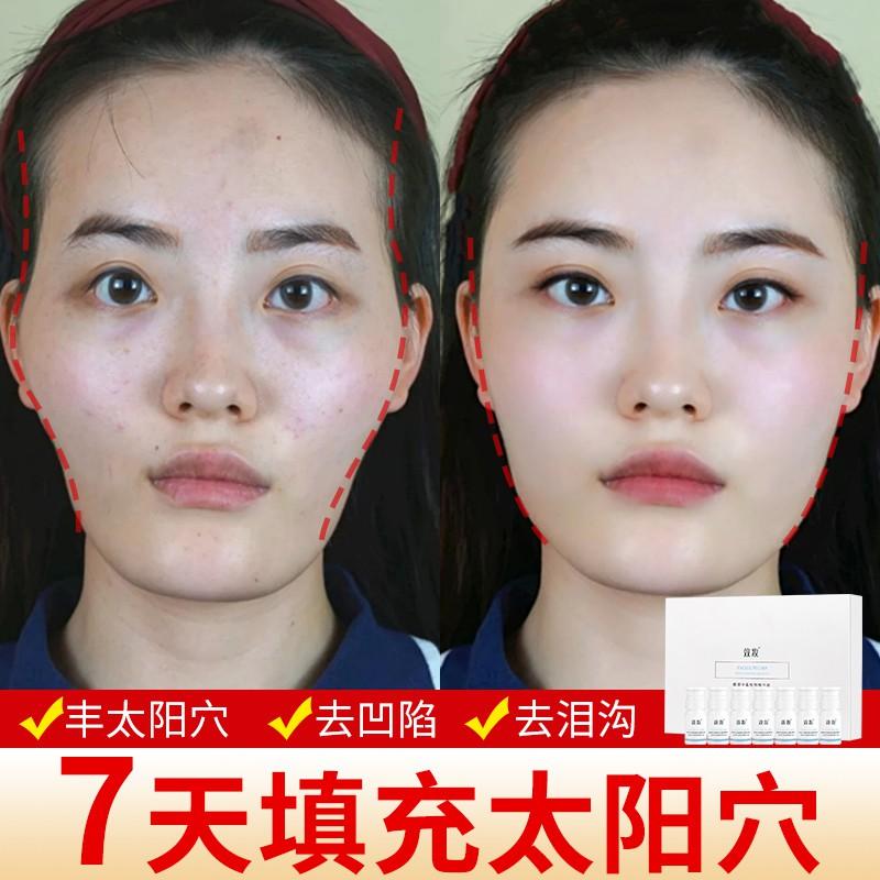 豐臉部增肥太陽穴眼窩凹陷修復去除法令紋淚溝額頭填充神器精華