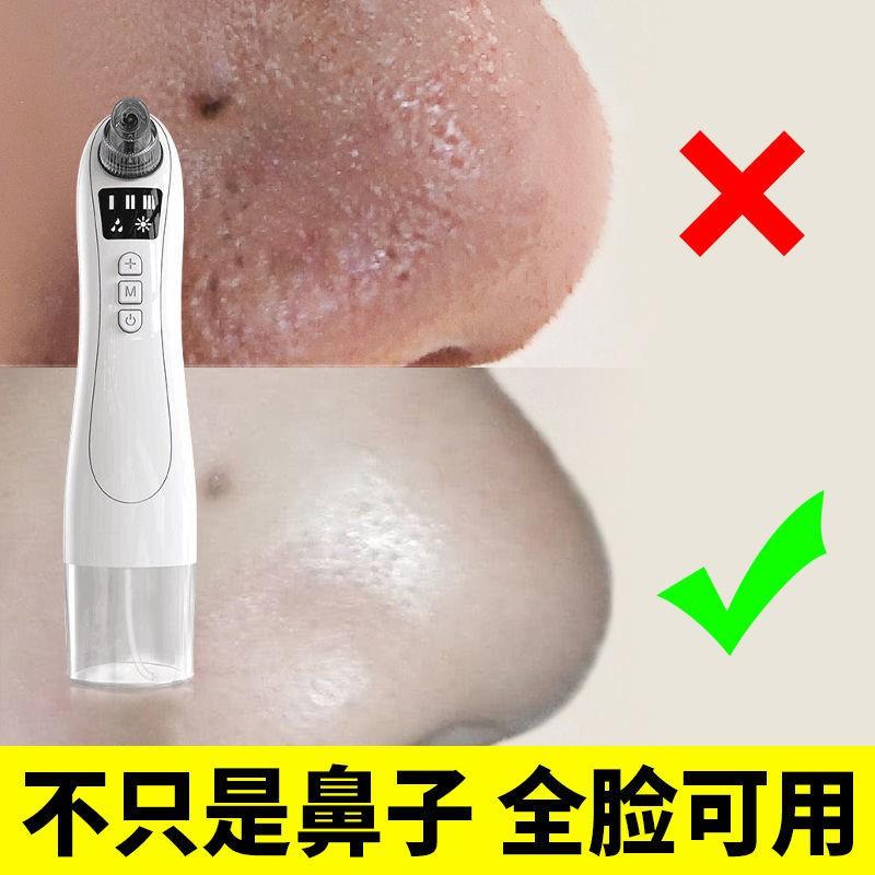 電動吸黑頭 小氣泡清潔儀美容院家用美容儀電動去黑頭粉刺螨蟲神器毛孔清潔器